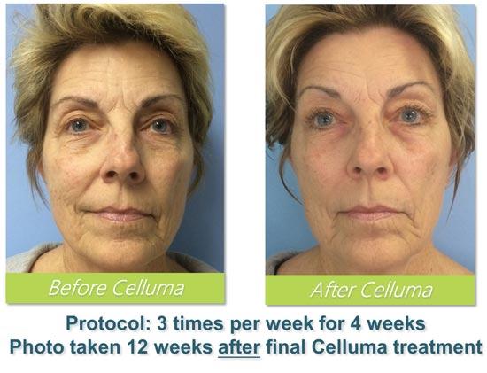 Celluma LED Treatment Anti-Ageing