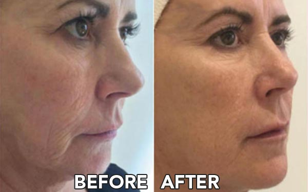 Before and After Profhilo Skin Booster