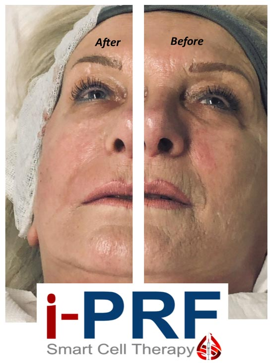 Platelet Rich Plasma Before & After