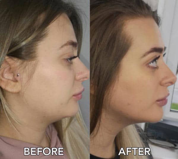 Chin Before and After Aqualyx