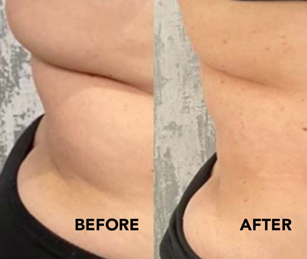 Love handles after Fat Dissolving Procedure